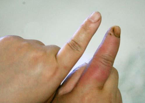 仔细观察发现手指上有一点被扎破的印痕